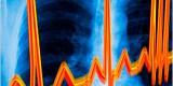 Пятидесяти брянским кардиобольным рекомендовано хирургическое лечение