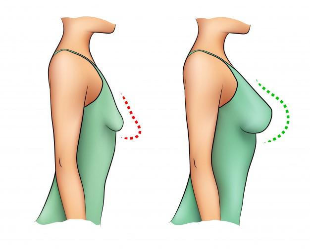 Причины, из-за которых обвисает грудь