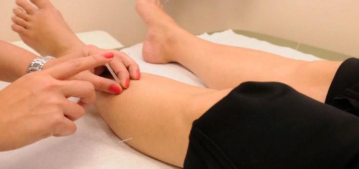 Иглоукалывание для похудения: принцип действия процедуры