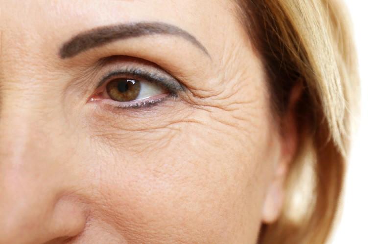 9 причин появления морщин