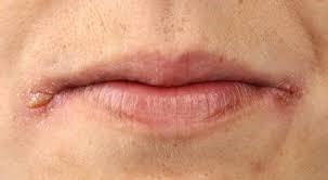 Заеды на губах: как избавиться навсегда