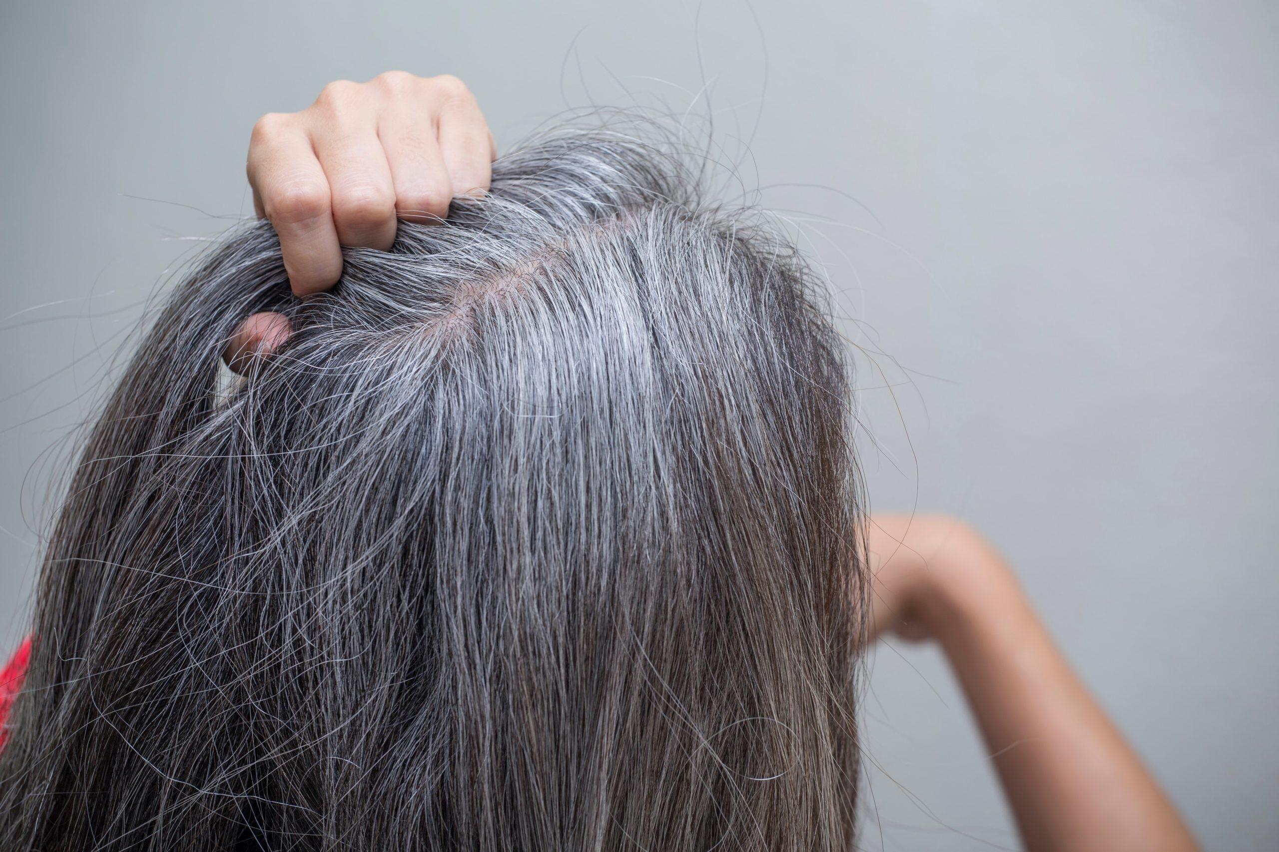 Седые волосы на голове – что с ними делать и как от них избавиться без окрашивания